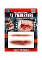 FX de transferencia garganta cortada